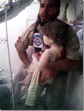 Russische bombardementen - gewond kind - 1 oktober 2015