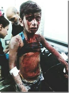 Aleppo - Gewond jongetje langs regeringszijde - 18 augustus 2016