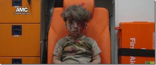 Aleppo - Gewond jongetje van het Aleppo Media Center - 18 augustus 2016