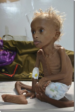 Hongersnood - Stervend kind
